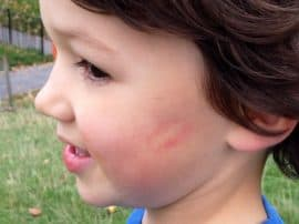 Lipstick Kiss Chase – our new family tradition!